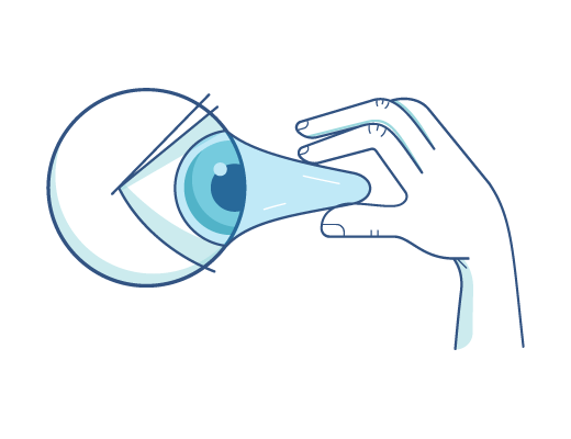 Pulling out contacts from an eye